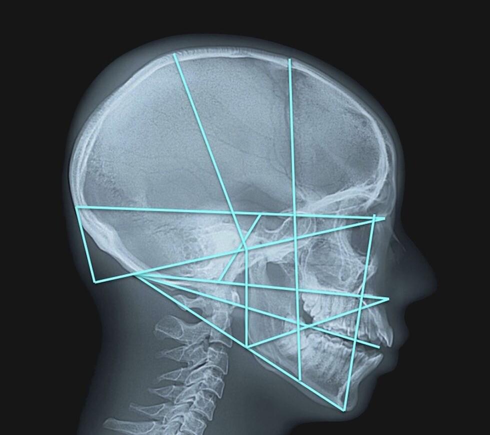 Site d'information médicale du Docteur Brice Carlot, chirurgien maxillo-facial - stomatologue à Nice et Beausoleil (frontière de Monaco)